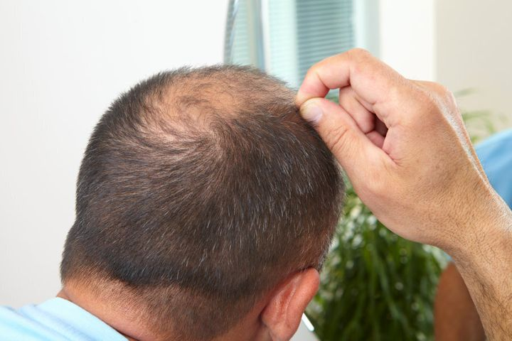 The other place men might initially notice hair loss is at the back of their head.
