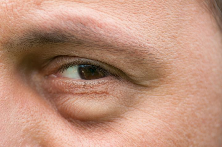Eye bags can become weaker or can pop out with age.