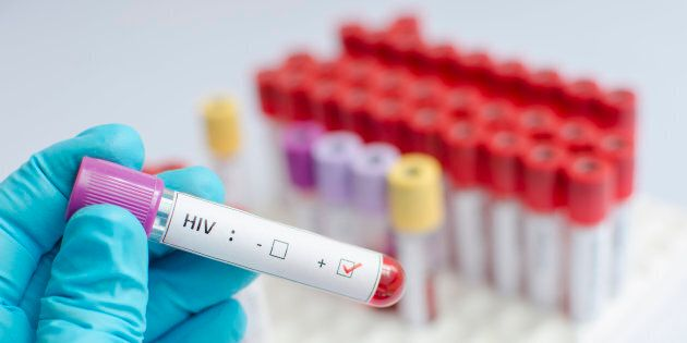 """Treatment that would suppress HIV levels without the need for antiretroviral therapy would be considered a """"functional"""" cure."""