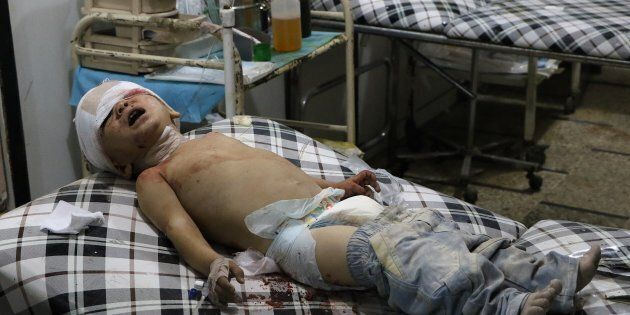 A wounded toddler waits to receive medical treatment following an airstrike over the civilian populated residential areas.