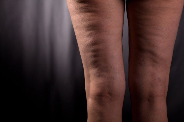 Having cellulite doesn't mean you're unhealthy.
