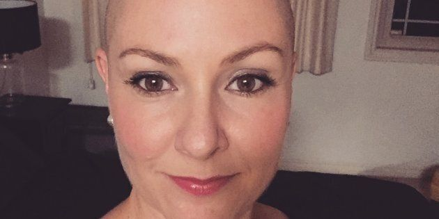 What It's Like To Be A Bald Woman In The Dating