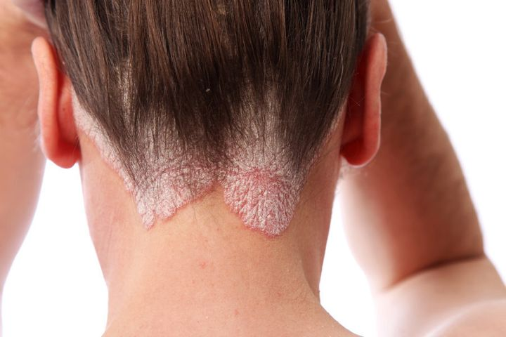 An example of psoriasis on the hairline and on the scalp.
