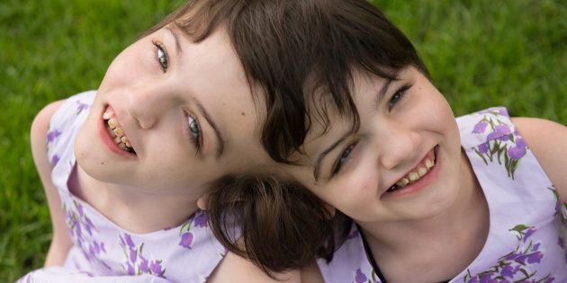 Tatiana and Krista Hogan are craniopagus twins who live with their family in Vernon,