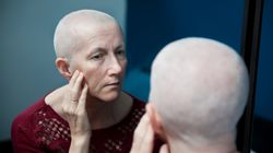 1 In 5 Cancer Patients Experience PTSD After Diagnosis, Study