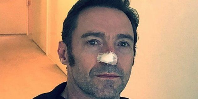 Hugh Jackman has undergone a sixth treatment for skin