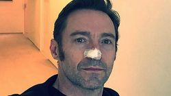 Hugh Jackman Reminds Us Again About The Perils Of Sun