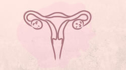 Let's Talk About PCOS. Like, Really Talk About