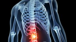 The New Drug With Enormous Potential To Treat Spinal