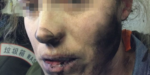 The unidentified woman suffered burns to her face and
