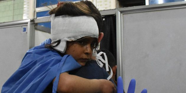 A Syrian child, wounded in a suicide car bombing that targeted their buses in Rashidin, west of Aleppo...