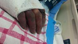 Pregnant Woman Faces Hand Amputation After ER Visit Gone