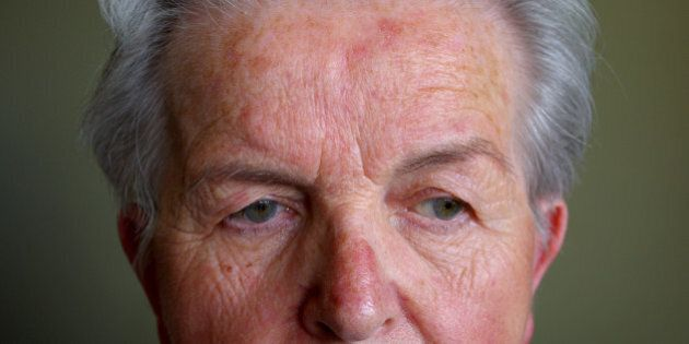 Rosacea is a common but often misunderstood condition that is estimated to affect over 45 million people...