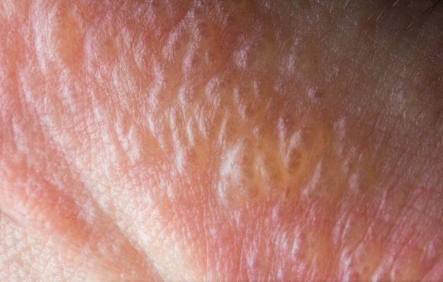 Close up macro poison ivy rash blisters on human skin.
