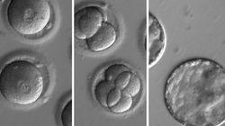 Scientists Repair Disease-Causing Gene In Human Embryos For 1st