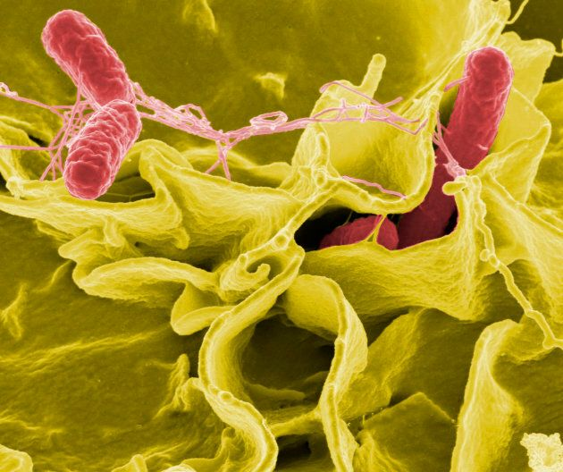 Colour-enhanced scanning electron micrograph showing Salmonella typhimurium, red, invading cultured human cells.