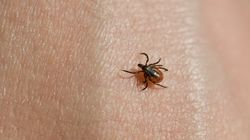 10 Frequently-Asked Questions About Tick