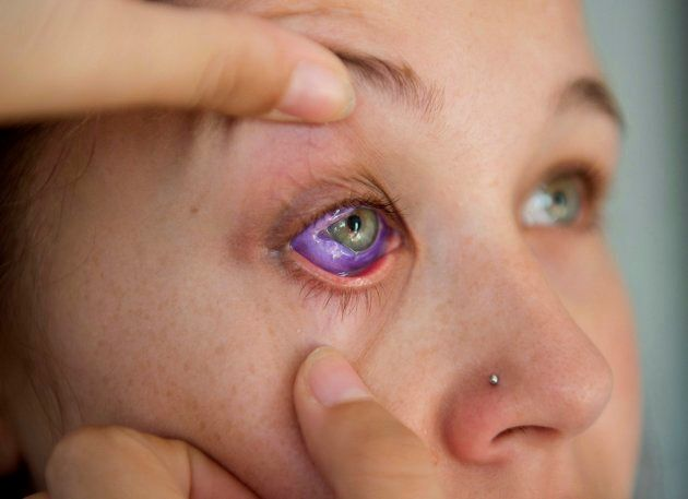 Catt Gallinger, who had a botched ink injection in her eyeball, shows the amount of swelling in her eye,...
