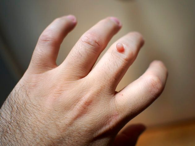 Warts can appear on fingers.