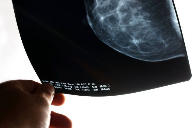 HER2+ Breast Cancer Is Aggressive And Scary, But There's Good News