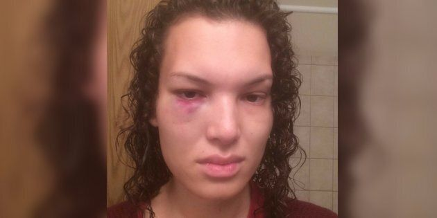 Aisha Walker says she was left with a black eye and seven shattered teeth after being punched by a stranger...