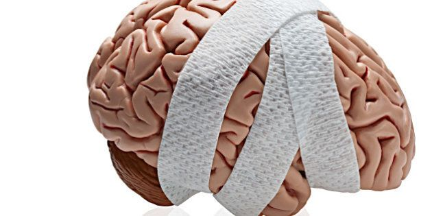 How to Prevent a Traumatic Brain