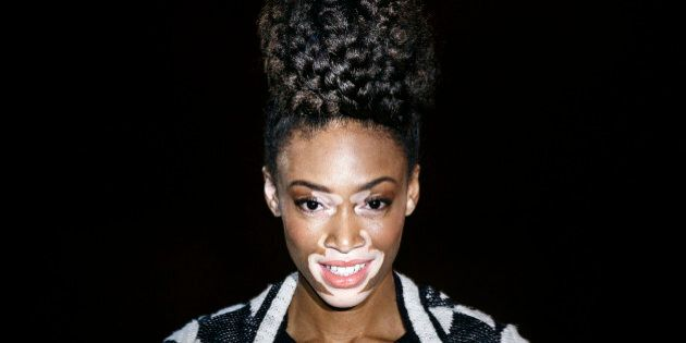 Top model Chantelle Brown-Young, known as Winnie Harlow, displays a Spring/Summer design by Desigual...
