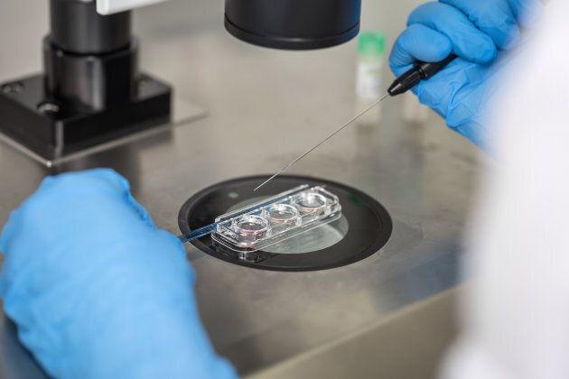 In vitro fertilization process.