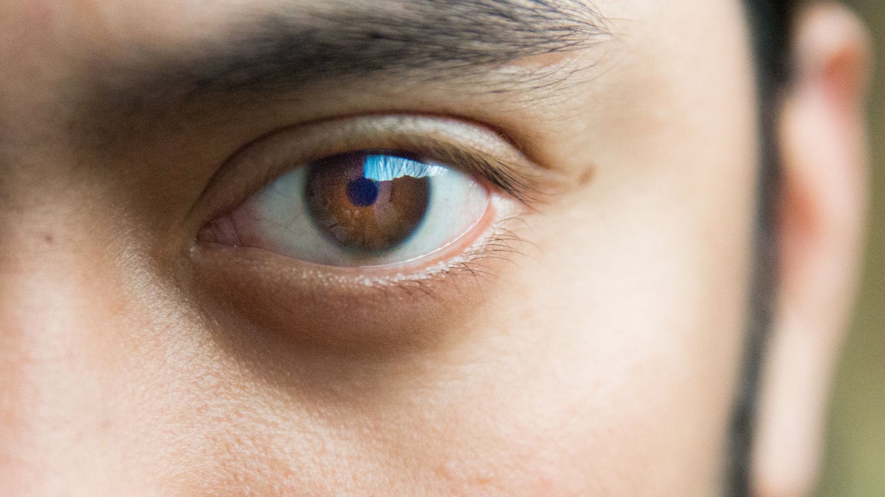 What To Do If Your Eye Twitches