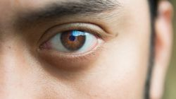 What Your Eyelid Twitch Says About