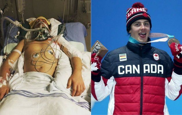Mark McMorris nearly died after suffering a snowboarding injury near Whistler, B.C. Earlier this month...