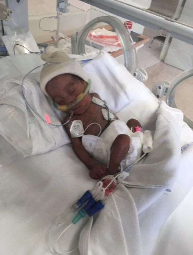 Today, Madison weighs two pounds. If all goes well, she'll be ready to leave the hospital by