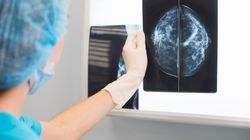Most Women With Breast Cancer Can 'Safely Avoid Chemotherapy':