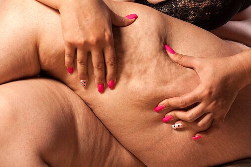 Can You Really Get Rid Of Cellulite? This Doc Says