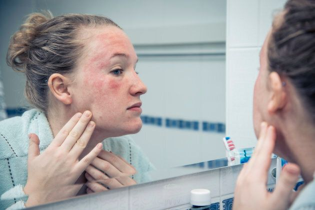 Eczema Lowers Quality Of Life More Than Heart Disease, Study