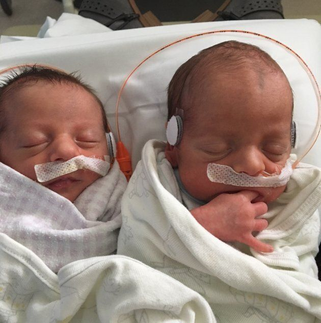 Jack and Liam Johnston were born July 17,