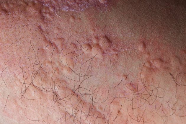 Ease the burning feeling on skin associated with hives with cold