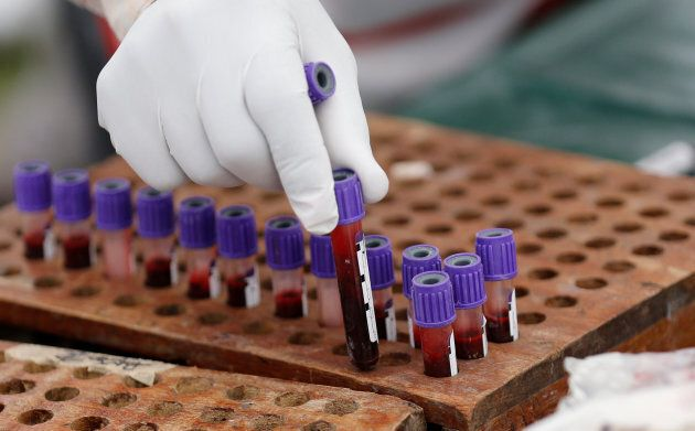 A medic arranges blood samples donated during a Valentine's Day campaign in Nairobi, Kenya on February 14, 2018.