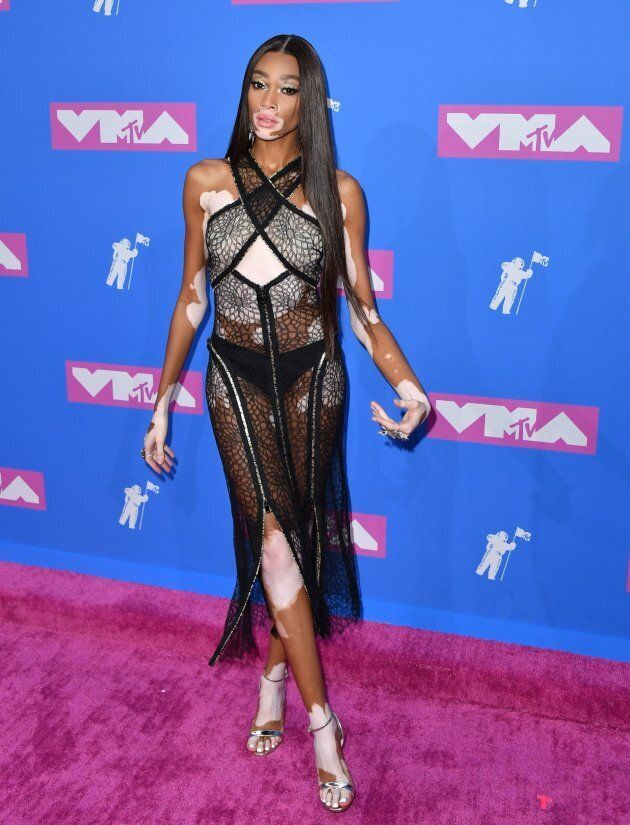 Canadian model Winnie Harlow attends the 2018 MTV Video Music Awards at Radio City Music Hall on Aug....