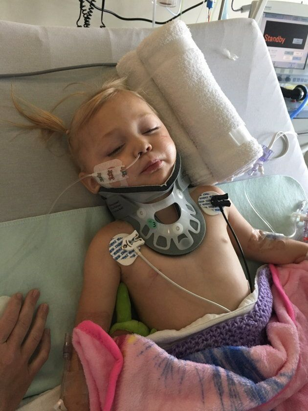 Two-year-old Jaclyn Derks of Calgary was partially paralyzed by a shard of glass while playing in a blanket...