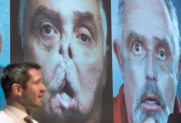 Dr. Daniel Borsuk speaks next to photographs of Maurice Desjardins during a news conference at the Maisonneuve-Rosemont...