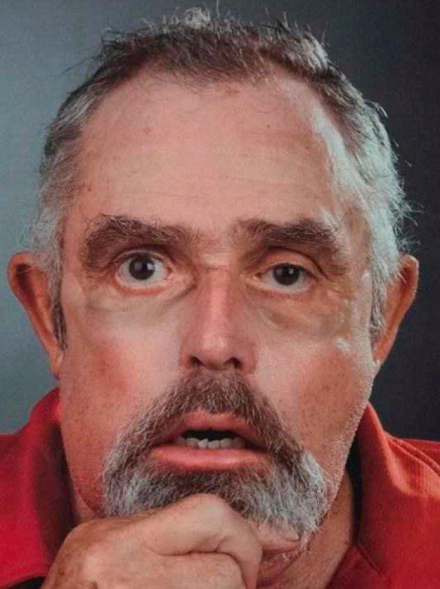 Maurice Desjardins after his face
