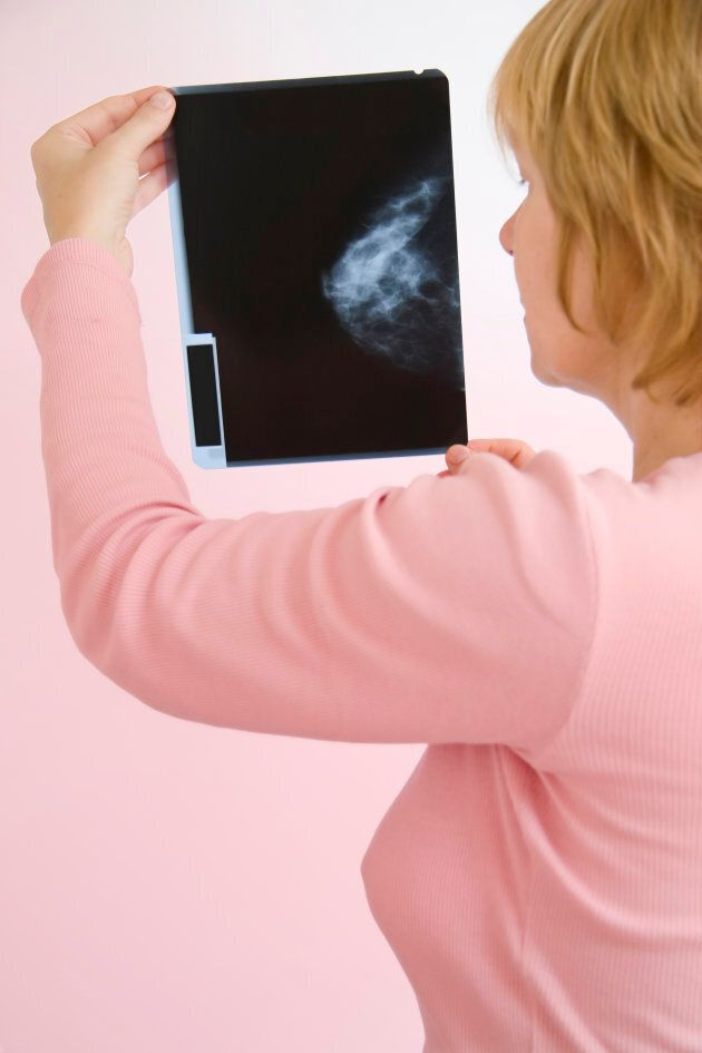 New guidelines encourage women aged 40 to 74 to discuss breast cancer screening with their doctors and make a shared decision about whether to get a mammogram based in part on a woman's preferences.