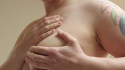 Why Do Canada's New Breast Cancer Guidelines Advise Against Life-Saving