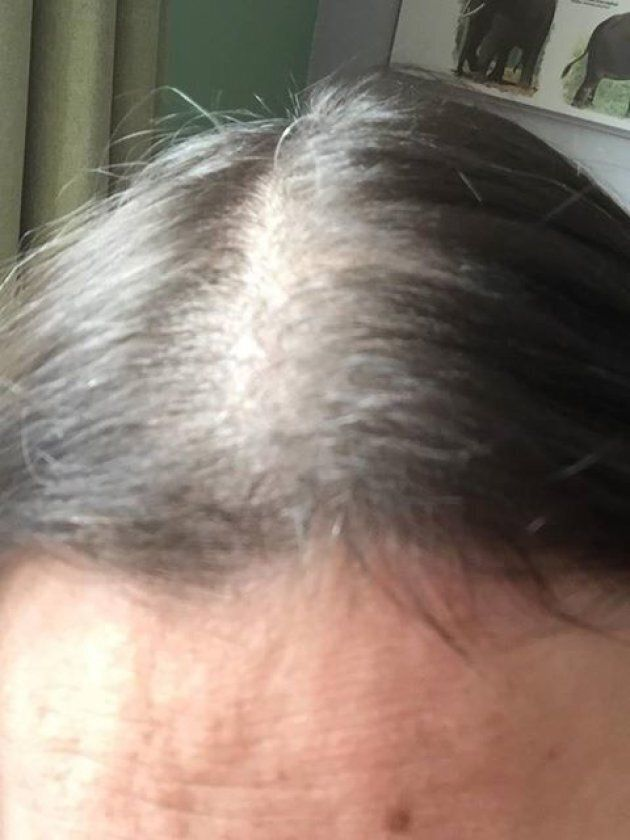 Postpartum Hair Loss Can Be Severe And Devastating For New