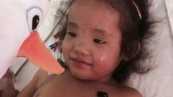 Second Twin Gets Liver Transplant Two Months After Her