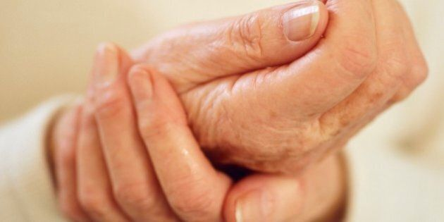 Arthritic hands. Elderly woman rubbing her arthritic sore hand. Arthritis is a degenerative disease that results in the loss of cartilage between joints, causing pain and inflammation.
