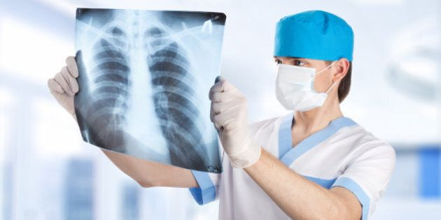 medical doctor looking at x-ray picture of lungs in