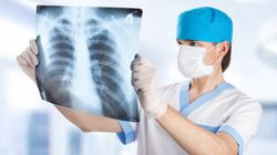Lung Cancer Is Preventable And Treatable With Early