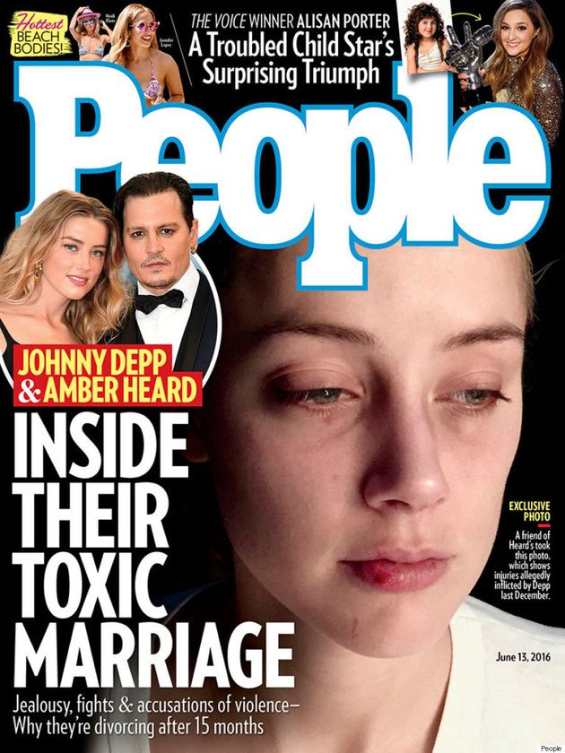New Amber Heard Photos Show Injuries Allegedly Caused By Johnny